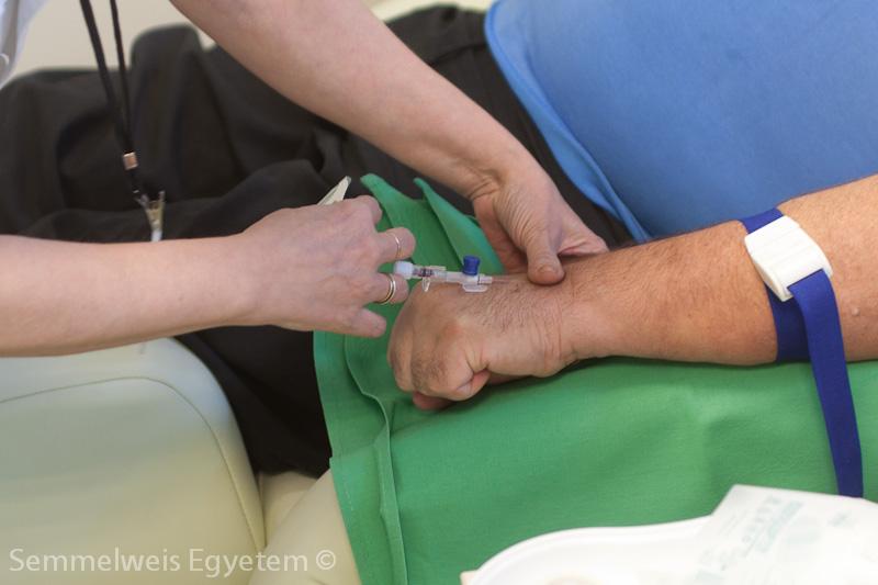 hogyan kezeljük a kéz gyulladt ízületeit ok nélkül a térd fájdalma