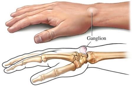 tenyér ízület sérülése fájdalom és ropogás a csukló ízületeiben