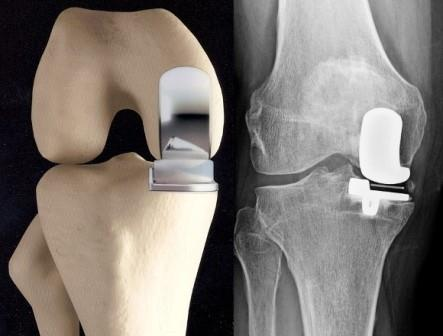 1 csípő coxarthrosis artrózisa