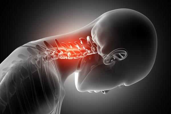 A nyaki-vállízület osteochondrosis, Súlyos fájdalom a váll és a nyak beszél?