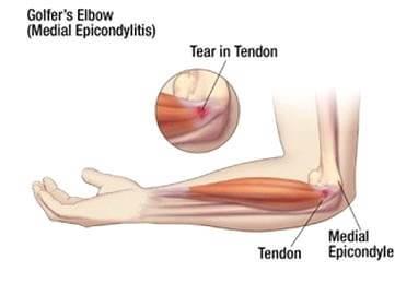 nyilalló fájdalom az ujjakban hogyan kezelik a reumatológusok az artrózist