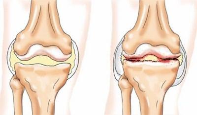 1 fokos csípőízület deformáló osteoarthrosis kezelése ha a reumatikus teszt negatív, és az ízületek fájnak