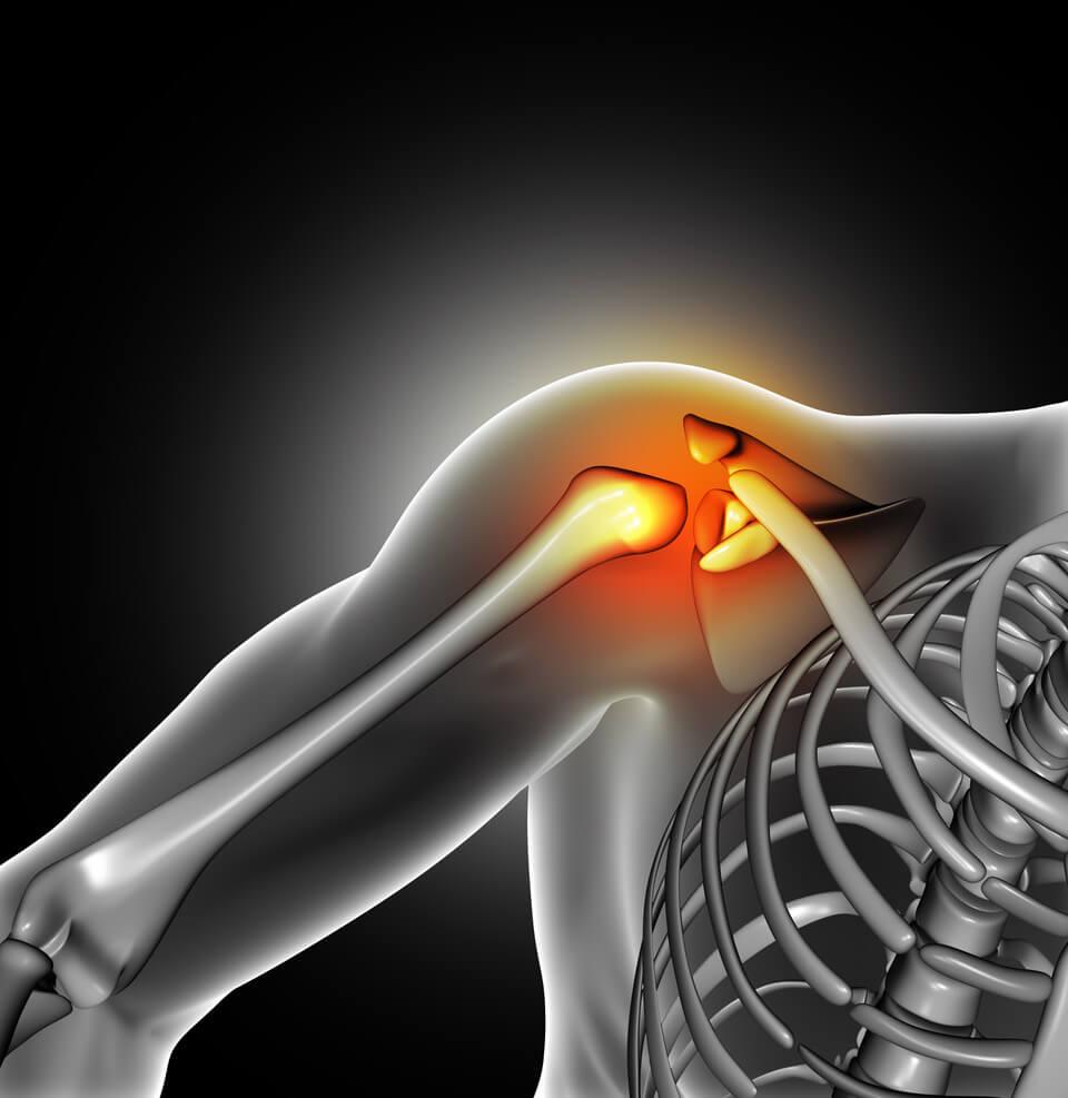 fáj térdízület futás közben