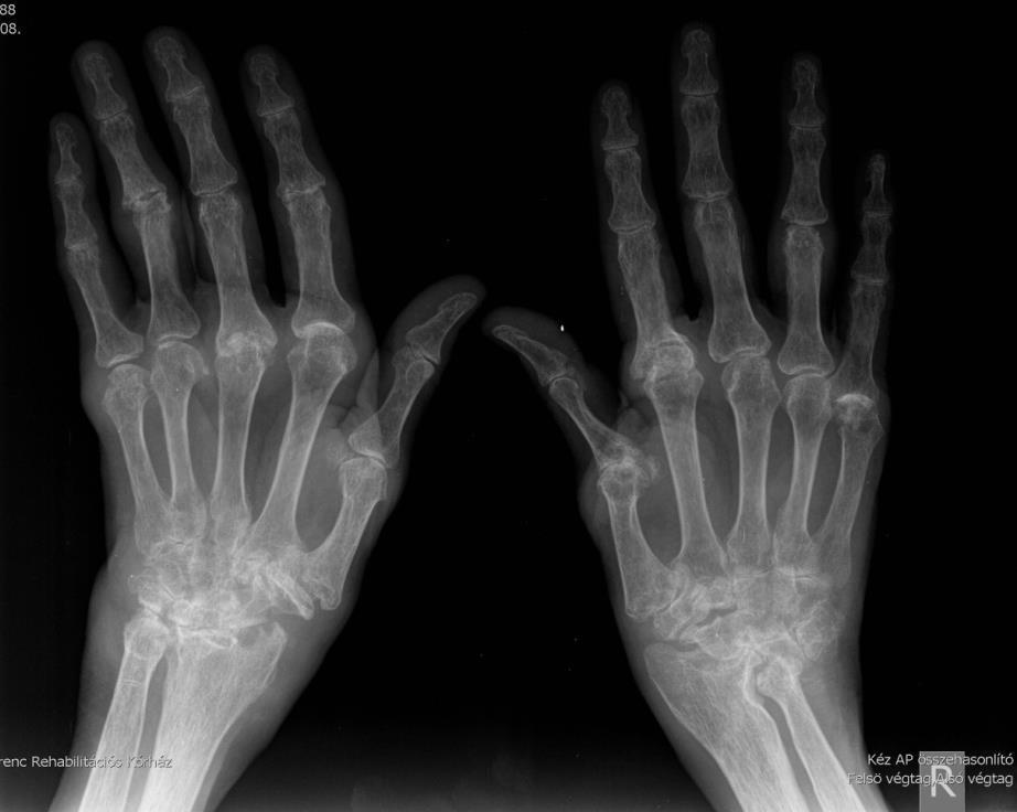 a térdízület folyadékának okai és kezelése rheumatoid arthritis kezek