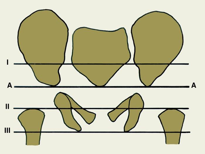 a csípőízület kötőanyagai fájnak, hogyan kell kezelni