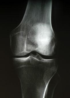 térd artrózisának röntgen tünetei artrózisos kezelés magnetoterápiával