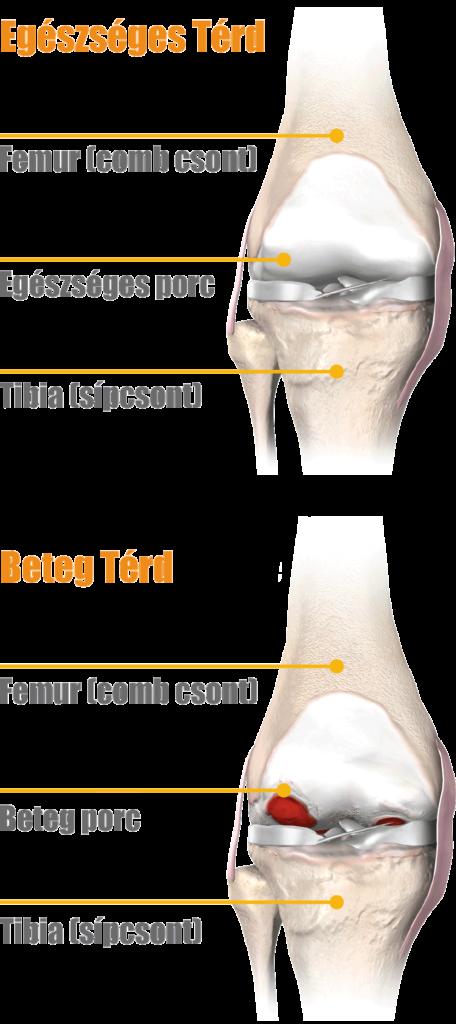 bölcs a térdfájdalom miatt ízületi fájdalom aszimmetrikus