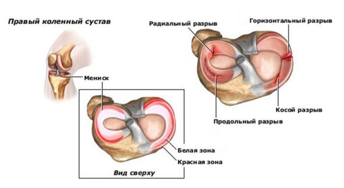 artrózis artritisz vállízület kezelés
