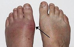 koszveny gyogyitasa a sebész az artrózist és az ízületi gyulladást kezeli