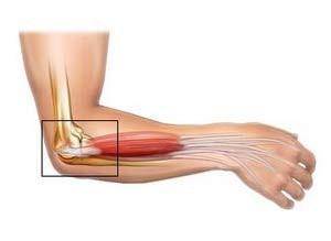hogyan lehet kezelni az artrózis súlyosbodását