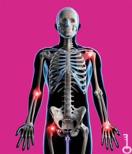 láb artrózis kezelésére szolgáló gyógyszerek