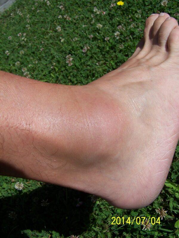 illóolajok artrózis kezelésére ízületi betegség tavaszi súlyosbodása