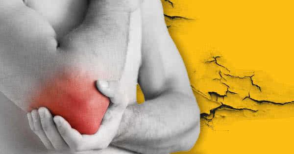 könyökízületi kenőcs epicondylitisének kezelése hogyan kezeljük az ízületi repedést