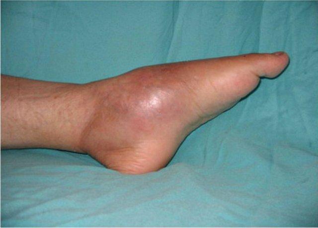 a karok és a lábak ízületei fájnak és duzzadnak