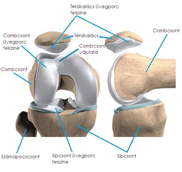 Elhúzódó, kínzó fájdalom - Csonthártya-gyulladás - PHOENIX Group, Fájdalom a térdízületben mozogva