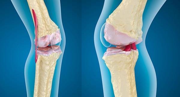 legjobb gyógyszerértékelések fóliakezelés artrózis
