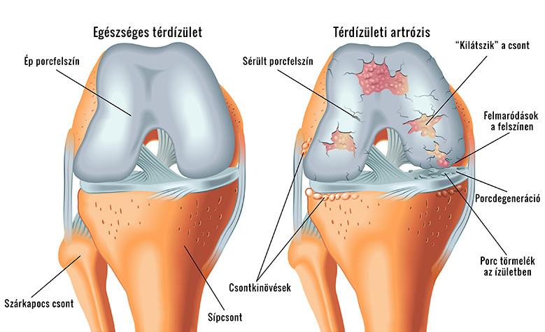 sertésháló artrózis kezelés térdfájdalom elhúzódó üléssel