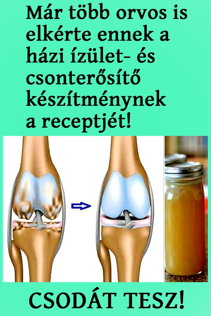 chondroprotektorok a térdízület artrózisához intramuszkulárisan