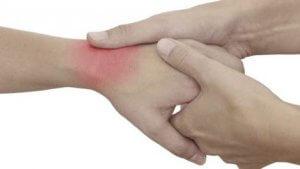 a csuklóízület ízületi gyulladásának kezelésére