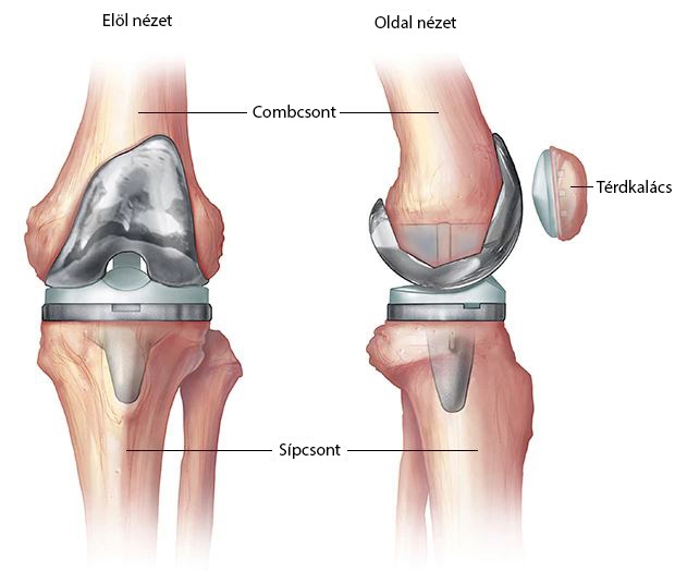 a térdízület belső és külső meniszciájának károsodása metatarsalis phalangealis ízületi fájdalom