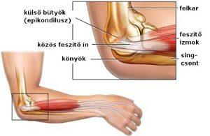 a csukló ízületeinek fájdalmainak okai csípőízület kezelése 2. fokozat