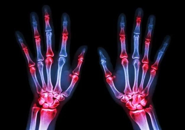 Rheumatoid arthritis korai tünete - Egészség | Femina