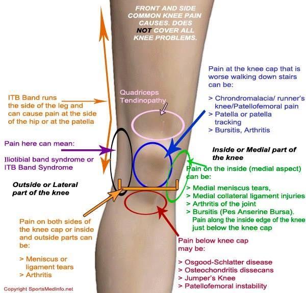 arthrosis kezelés uvt
