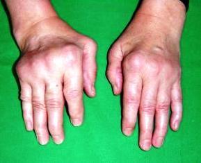 ízületi betegségek patogenezise és etiológiája fájdalom a lábcsontokban és a kézízületekben