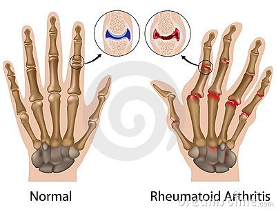 fájdalmas ujjak ízületei hogyan kell kezelni
