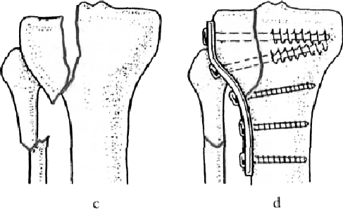 ízületi bőrbetegségek akut fájdalom a könyökízületben edzés közben