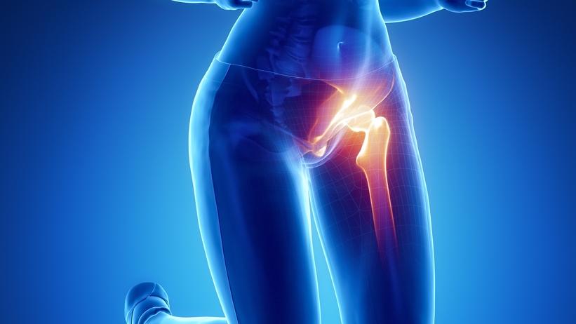csípő artrózis kezelésére szolgáló gyógyszerek