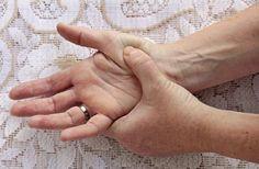 kezelni tudja a csípőízület coxarthrosisát