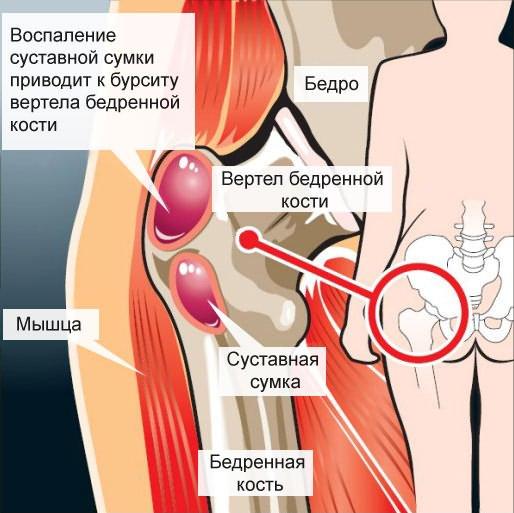 ízületi kezelés keresése mely orvos kezeli a lábak ízületeinek fájdalmát