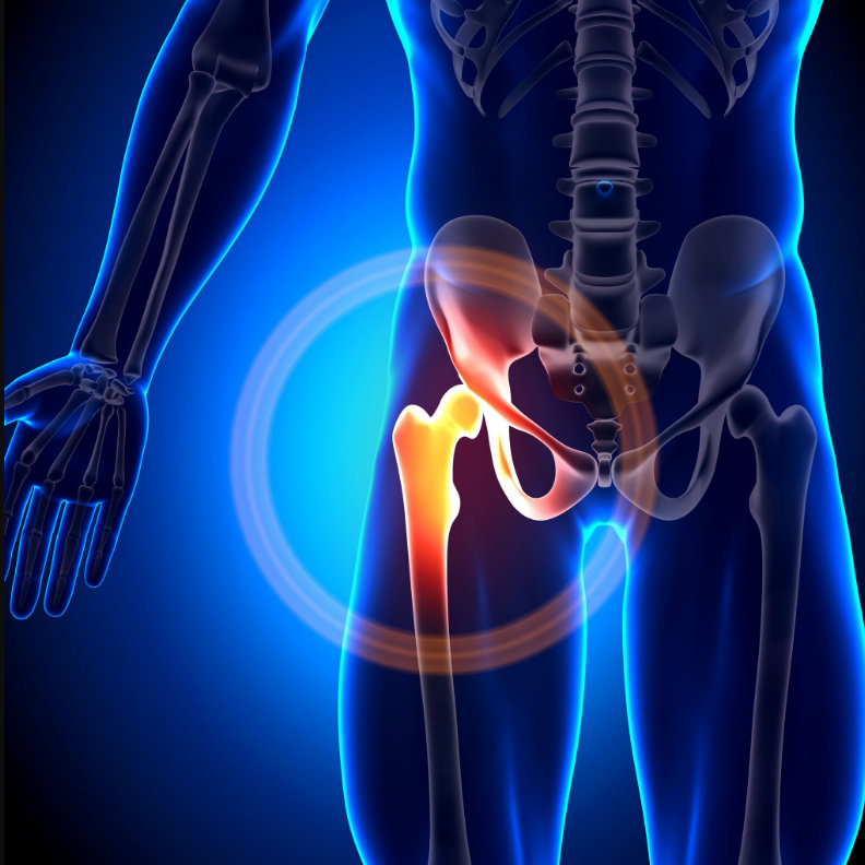 hogyan lehet a térdízületet erősíteni az artrózissal