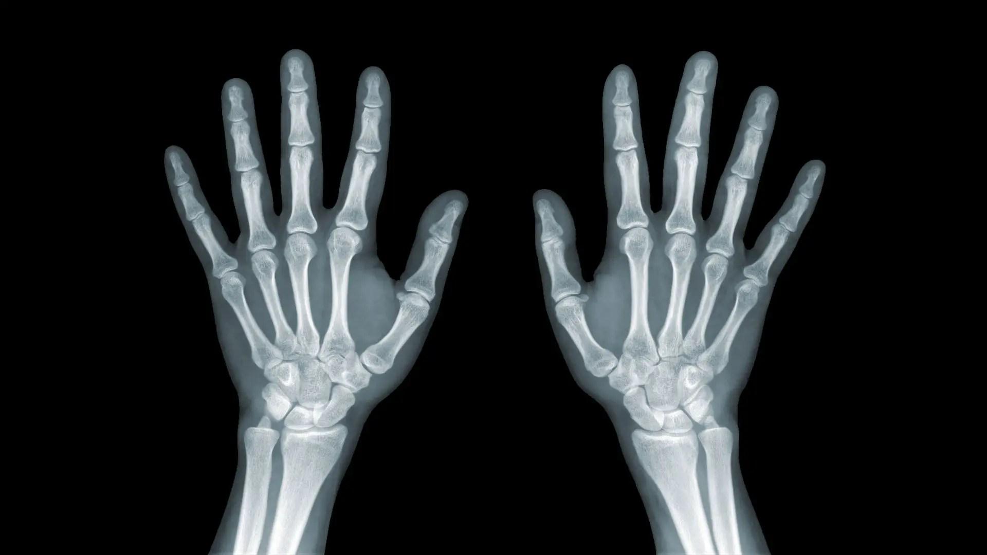 fájdalom a láb külső ízületében gombás ízületi gyulladás hogyan kell kezelni
