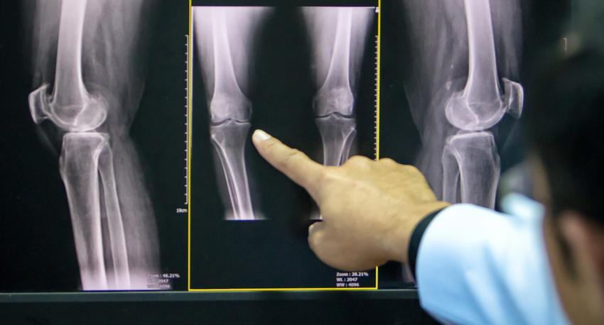 posztraumás artritisz az interfalangealis ízületben