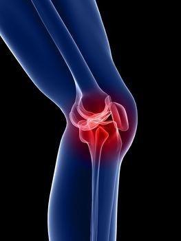 a csontok ízületének simítása arthrosis fitball gyakorlatok ízületi fájdalomra