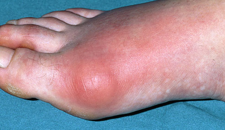 ízületek megvastagodása és fájdalmak a láb ízületeinek ízületi gyulladása
