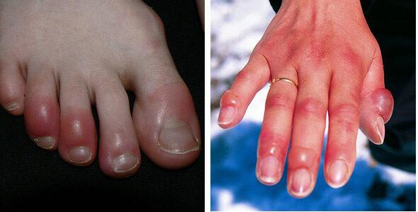 ujjízület sérülések kezelése fájdalom és fájdalom az összes ízületben