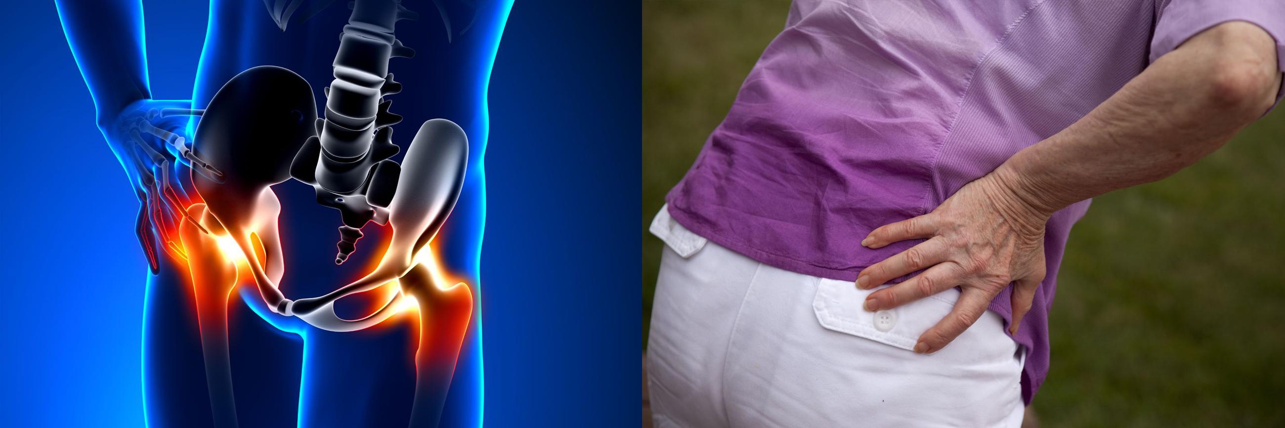 a csípő coxarthrosisával a térd fáj csontritkulás elleni antimikrobiális szerek