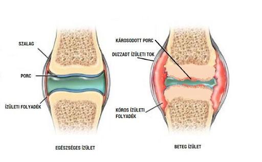 bal váll és nyaki fájdalom mely orvos kezeli a könyökfájást