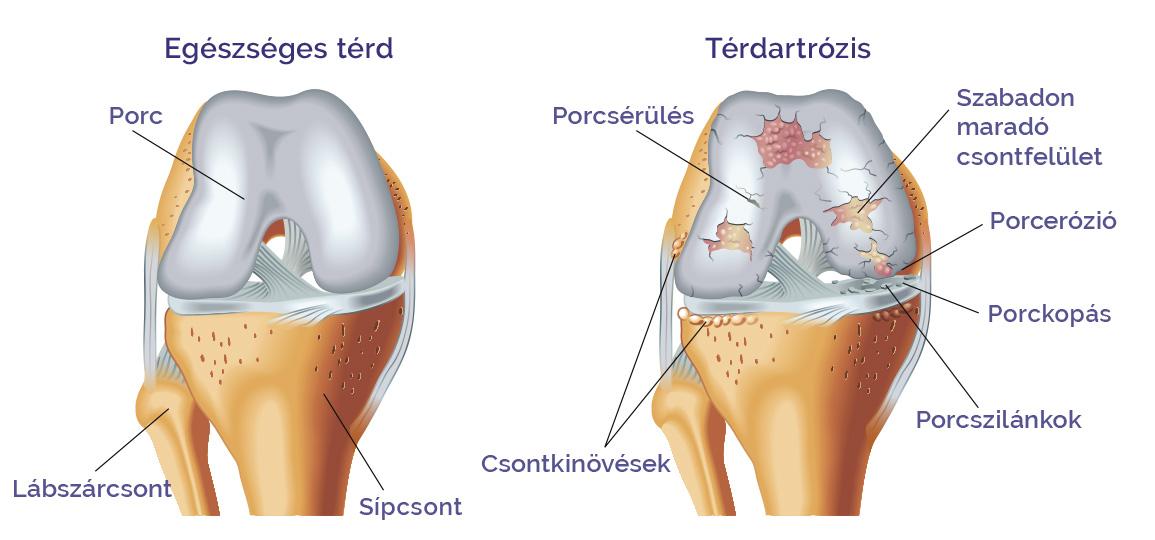 pitypang artrózis kezelés áttekintés