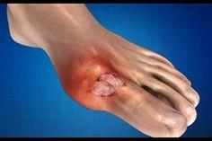 ízületi fájdalom a csatornába ízületek és ínszalagok kezelése otthon