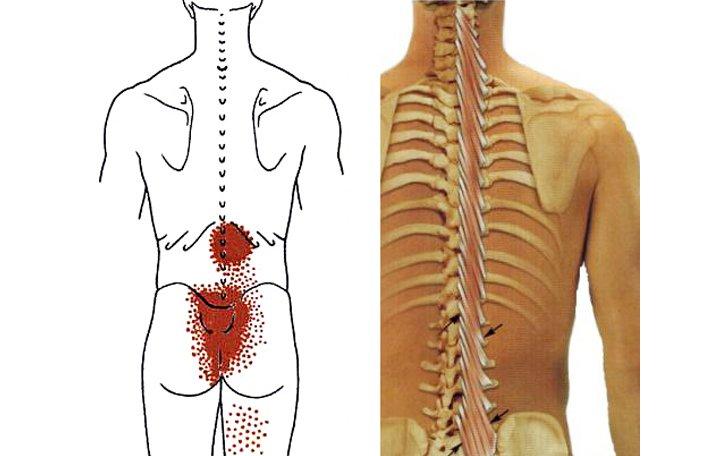 állt a csípőízület térd periarthritis kezelés áttekintése
