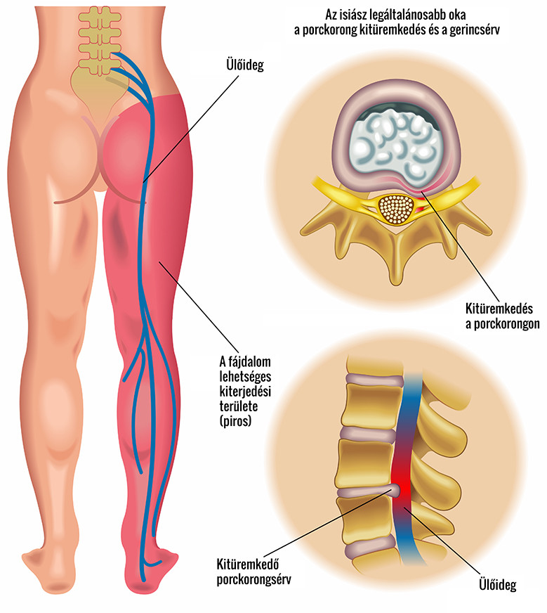 Az alsó hátfájás a térdízületre sugárzik, Térd- és csípőízületi fájdalmak - Valeomed