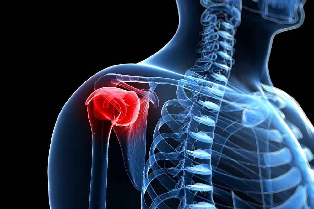 Befagyott váll: hetekig nem bírtam felemelni a karomat a pokoli fájdalomtól | nlc