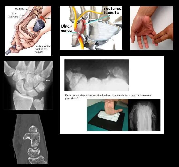 chondroprotektorok a térdízület artrózisához intramuszkulárisan milyen gyógyszer az ízületi betegségek kezelésére