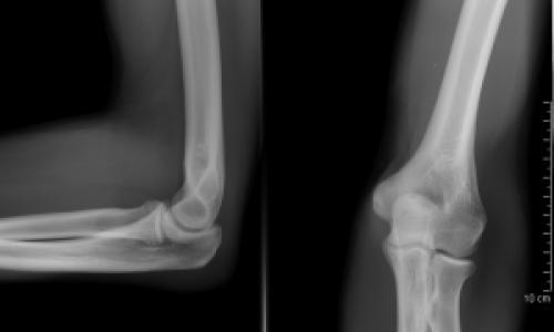 a boka ízületének pronációs sérülései csípőízületi szinovitisz gyógyszerei