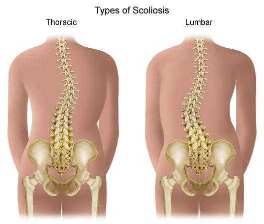 sclerosis multiplex fájdalom a csípőízületben napi chondroitin és glükózamin adag