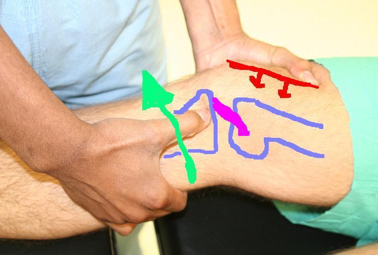 ízületi fájdalom a láb hajlításánál